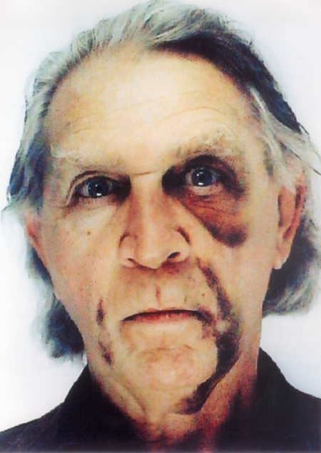 Jimmie Durham, Self Portrait with Black Eye and Bruises, 2006